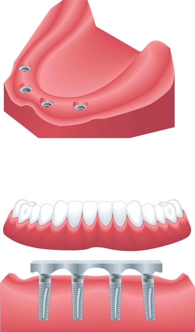 Implant Dentist Seattle